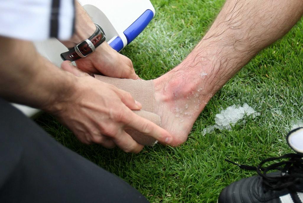 Umgeknickt schwellung fuß schmerzen keine aber Fuß umgeknickt